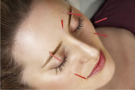 needling-therapy-for-face-glooming