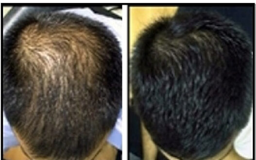 hair-loss-treatment-therapy