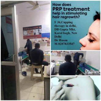 prp-treatment-hair-regrowth