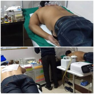 cupping-therapy-for-shoulder-pain-relief