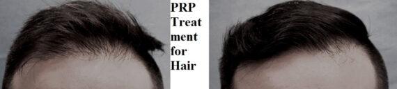 PRP-treatment-hair