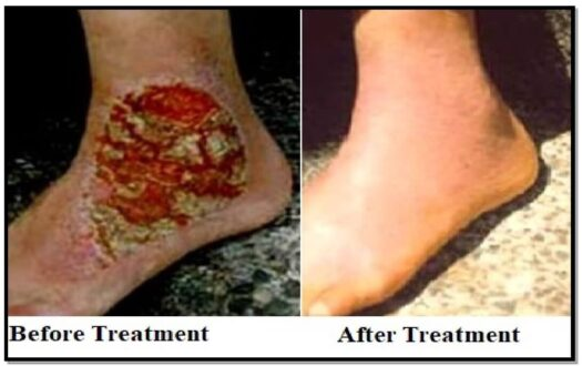 tinea-treatment-fungal-infection