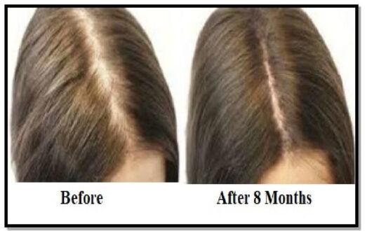 hair-fall-control-treatment