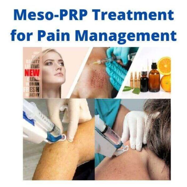 Meso-PRP Treatment for Pain Management