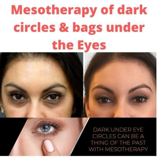 Mesotherapy of dark circles & bags under the eyes