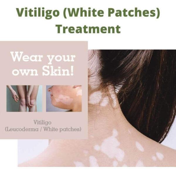 Vitiligo (White Patches) Treatment