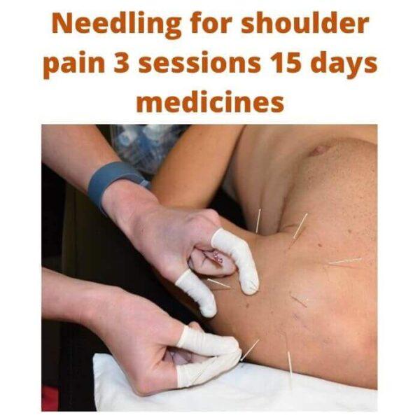 Needling for shoulder pain 3 sessions 15 days medicines