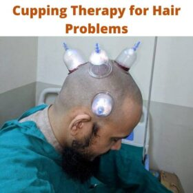 Cupping Therapy for Hair Problems