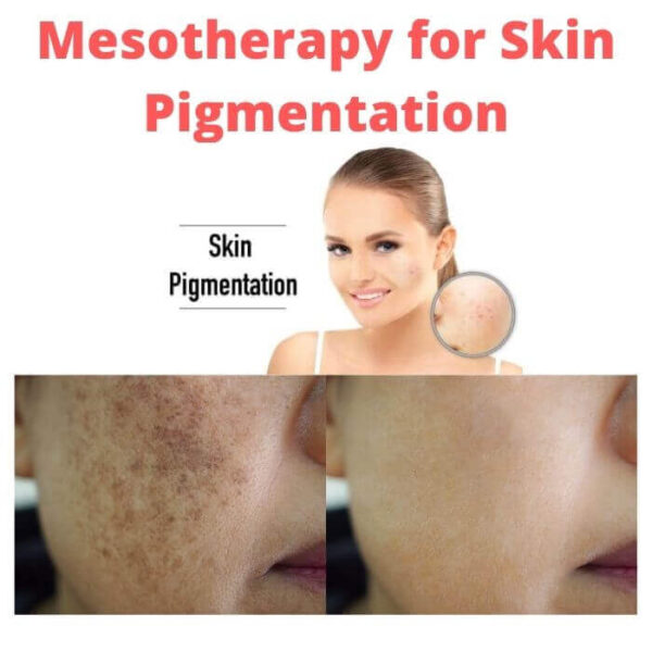 Mesotherapy for Skin Pigmentation