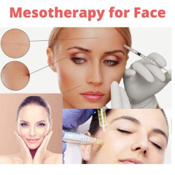 Mesotherapy for Face