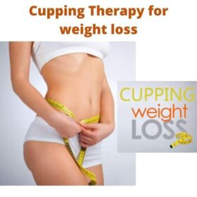 Cupping Therapy for weight loss