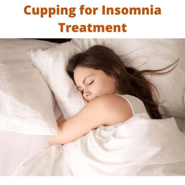 Cupping for Insomnia Treatment