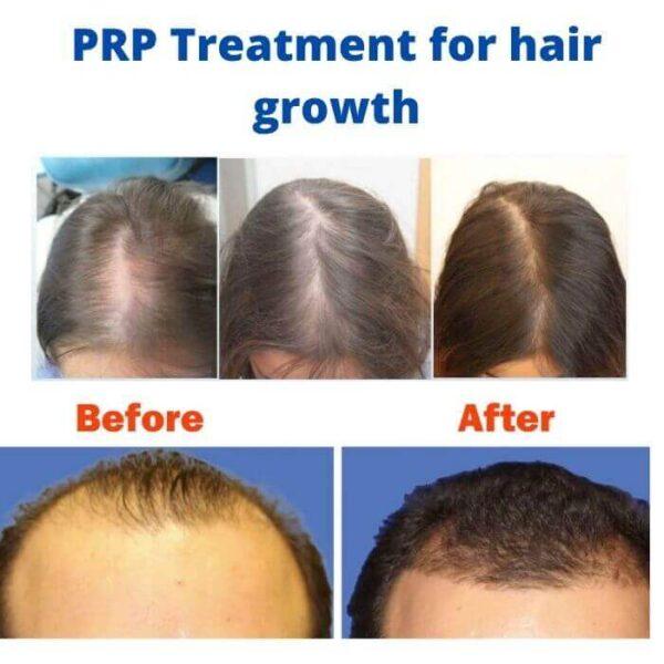 PRP Treatment for hair growth