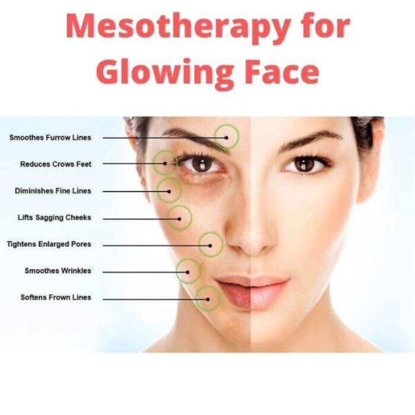 Mesotherapy for Glowing Face