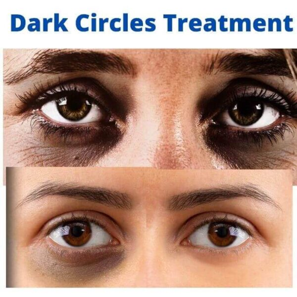 dark circle treatment