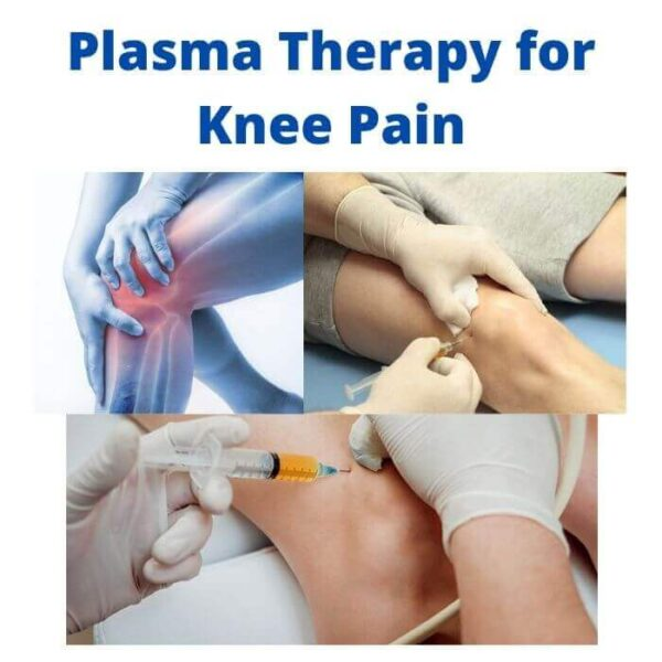 Plasma Therapy for Knee Pain
