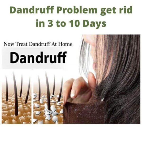 Dandruff Problem get rid in 3 to 10 Days