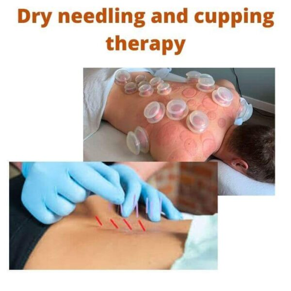 Dry needling and cupping therapy