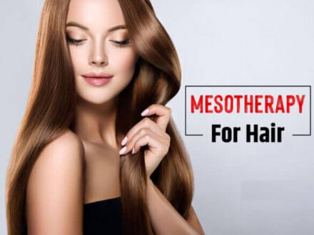 Hair restoration Mesotherapy option ultimate guide