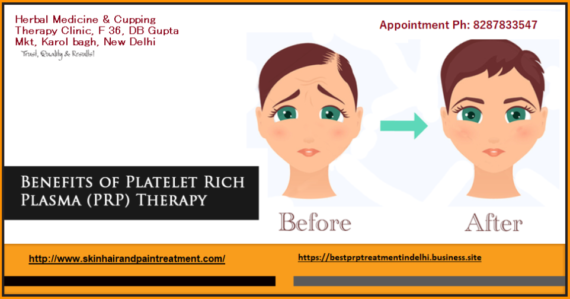 Benefits of PRP for Skin and Hair: Skin doctor near me