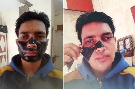 Face Skin Rejuvenation Treatment in Karol Bagh, New Delhi