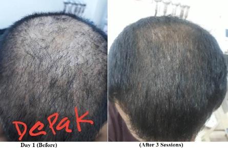 Treatment for Hair Loss in Karol Bagh, New Delhi, India